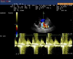 Echographie cardiaque (échocardiographie) chien